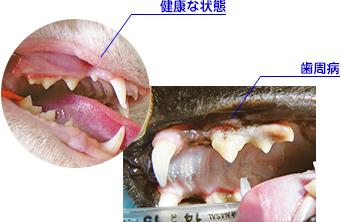歯肉炎,歯周炎