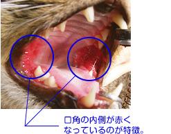 慢性歯肉口内炎