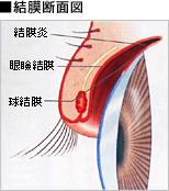 結膜断面図