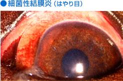 細菌性結膜炎(はやり目)