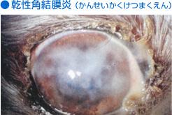 乾性角結膜炎(かんせいかくけつまくえん)