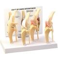 犬の膝関節骨関節炎の模型