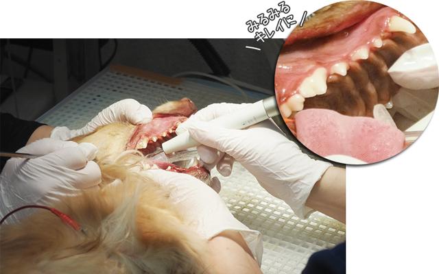 歯石除去だけで歯周病は治りません
